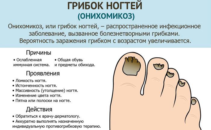 Чем в домашних условиях вылечить грибок ногтя