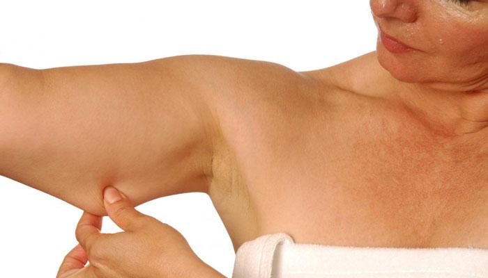 Как подтянуть кожу после похудения на бедрах